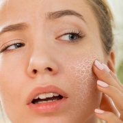 picture of someone with skin irritation from fragrance